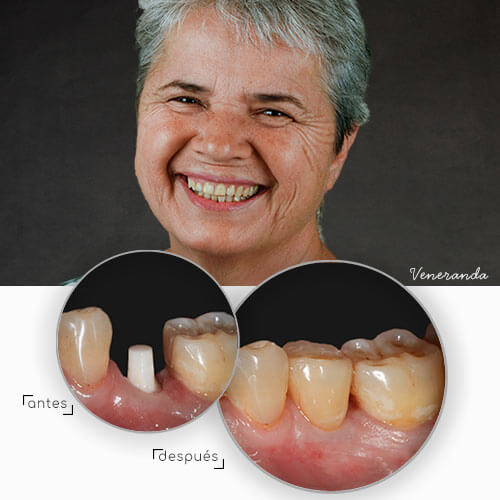 clinica-dental-biocare-tenerife-antes-despues-implantes-de-ceramica