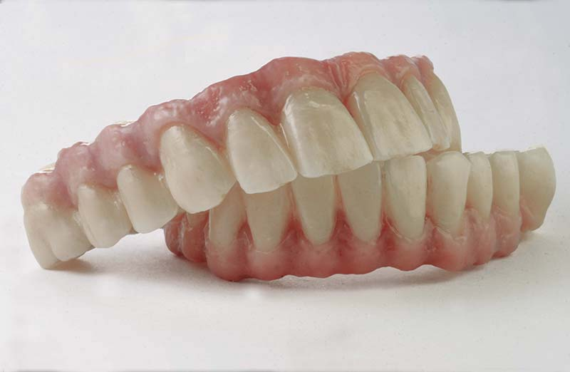 clinica_dental_tenerife_biocare_remobible5